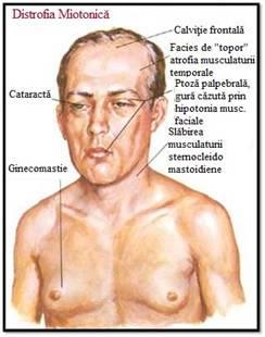 Miotonia atrófica - Médicos de Portugal