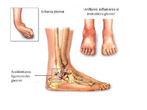 Dureri de genunchi glezna si gamba